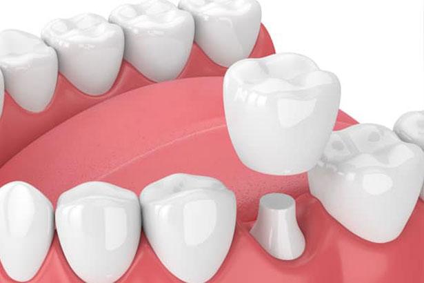 Дитяча стоматологія