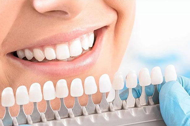 Відбілювання зубів Opalescence
